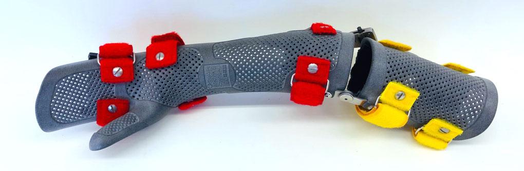 3D Druck Handorthese